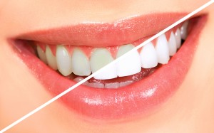 Cosmetic Dentistry - Teeth Whitening Success